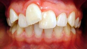ortodonti1